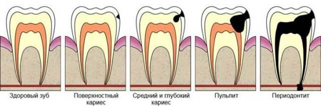 Ампутация пульпы, этапы витального и девитального удаления пульпы