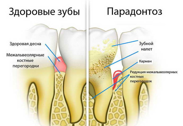 Кровоточат дёсны и запах изо рта: что делать, причины, как лечить в домашних условиях