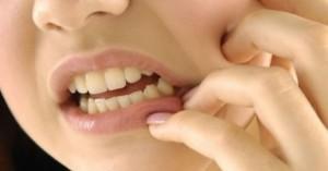 Что кладут в зуб после удаления: сколько держать тампон или турунду, когда можно убрать ватку, какое лекарство закладывают в лунку
