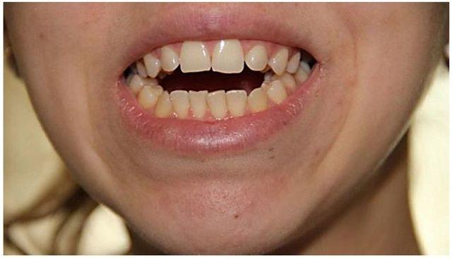 Открытый прикус: лечение у взрослых и детей, как исправляют, фото до и после исправления
