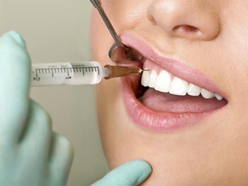 Болит десна после анестезии – почему болит десна, щека или горло, когда перестанет