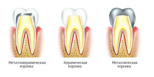 Цельнокерамические зубные коронки: показания, преимущества, технология протезирования