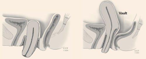 Гипертрофия шейки матки: что это, причины, симптомы, диагностика, лечение, прогноз, профилактика