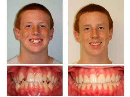 Как выровнять клыки брекетами и без них: видео, фото до и после
