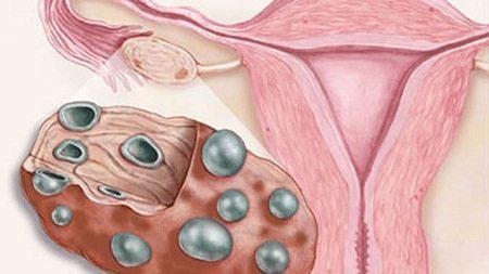 Кистозные изменения яичников (левого и правого) - что такое мелкокистозная трансформация