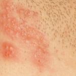 Аллергия от прокладок: симптомы, фото раздражения в интимной зоне, лечение