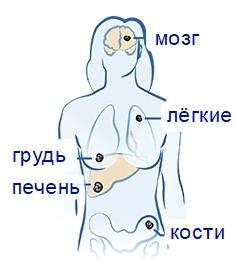 Что такое метастазы при раке молочной железы и что они чаще всего поражают: прогнозы, симптомы, признаки и лечение
