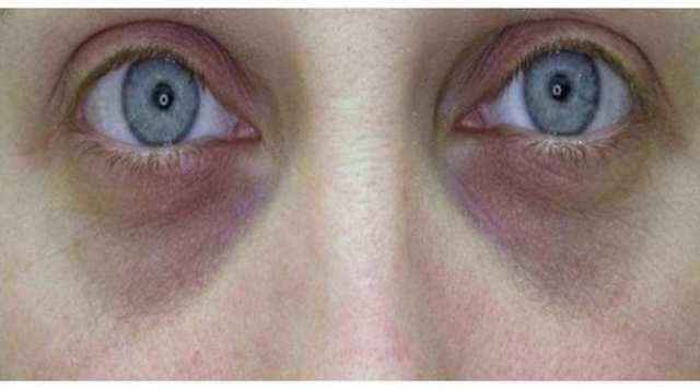 Черные круги под глазами: причины, как избавиться в домашних условиях и чем замаскировать