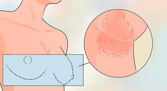 Опрелости под молочными железами: причины, лечение травами и мазями