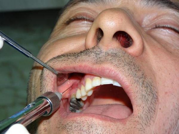 Проводниковая анестезия в стоматологии: что это такое, особенности проведения