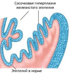 Пролиферация железистого эпителия шейки матки что это