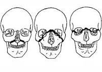Перелом верхней челюсти: симптомы, лечение, классификация, реабилитация, диагностика