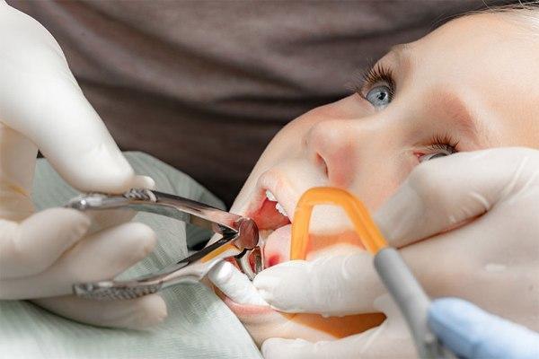 Удаление молочных зубов у детей: причины, особенности и показания