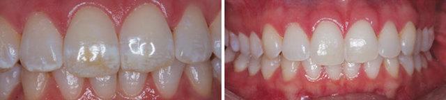Флюороз зубов: лечение, причины появления - причины, симптомы, диагностика