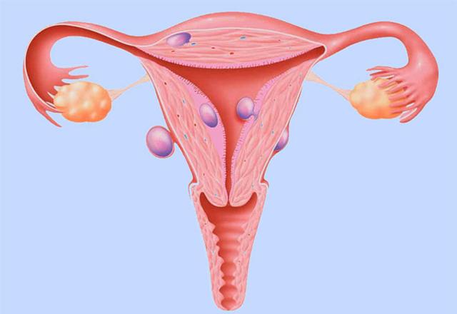 Миома матки - размеры для операции и показания к удалению