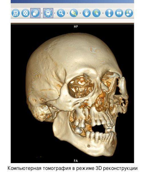 Перелом челюсти: симптомы и лечение сломанной нижней и верхней челюсти