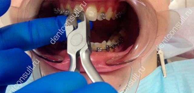 Снятие брекетов с зубов: сколько времени занимает, что делают дальше