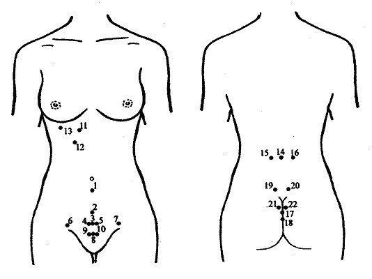 Гирудотерапия в гинекологии: особенности, показания и отзывы