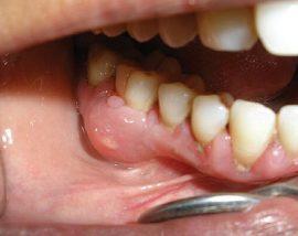Воспаление надкостницы зуба причины появления и методы лечения