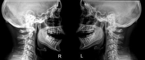 Рентген челюсти и височно-нижнечелюстного сустава у детей и взрослых
