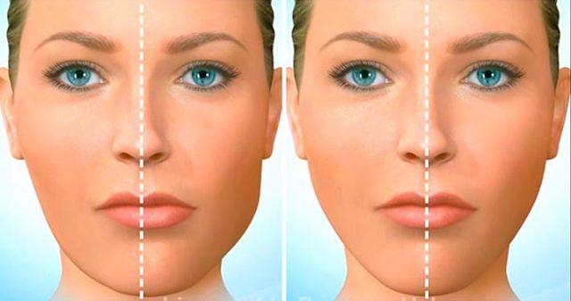Как исправить асимметрию лица без операции: патология и норма