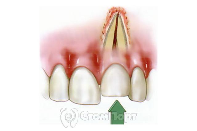 Перелом корня зуба: симптомы и лечение, продольный перелом зуба