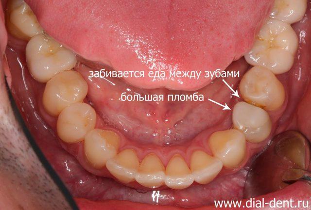 Керамическая коронка вместо пломбы, чтобы не застревала пища между зубами