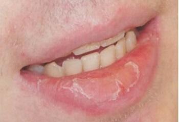 Корочка на губах: возможные причины и способы лечения