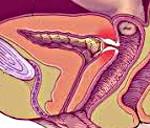 Пузырно-влагалищный свищ: мкб-10, причины, симптомы, диагностика, лечение