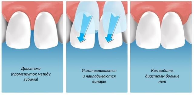 Что лучше виниры или коронки на передние зубы: важные отличия