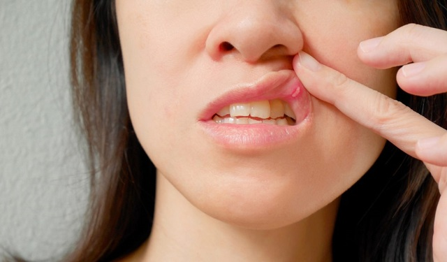 Травматический стоматит у детей и взрослых: симптомы и лечение