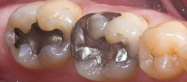 Сколько нельзя есть после пломбирования зуба световой и временной пломбой