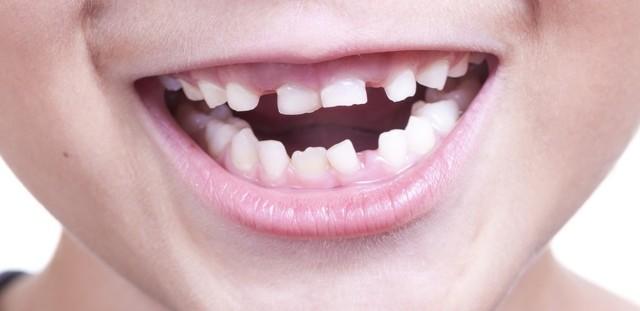 Если не выпали молочные зубы у взрослых, что делать