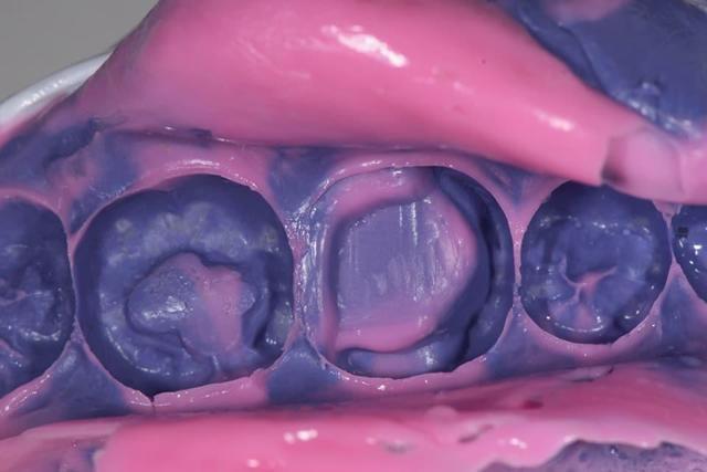 Композитная реставрация зубов: описание прямой и непрямой процедуры
