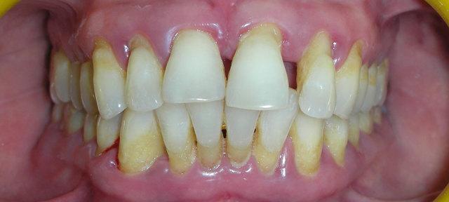 Скученность зубов: причины патологии у детей и взрослых, методы лечения