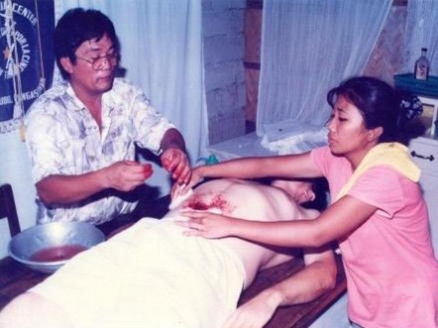 Хилеры – люди, которые делают операции руками без инструментов