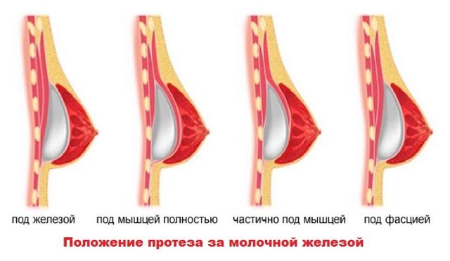Увеличение грудных желез: плюсы и минусы методов (2020)
