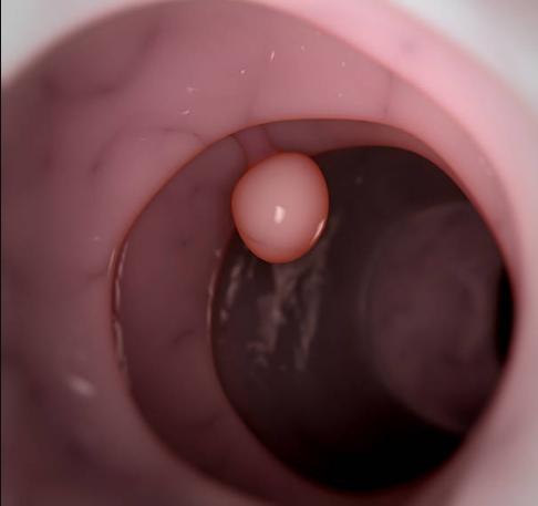 Полип уретры: симптомы, лечение народными средствами, операция, отзывы после удаления
