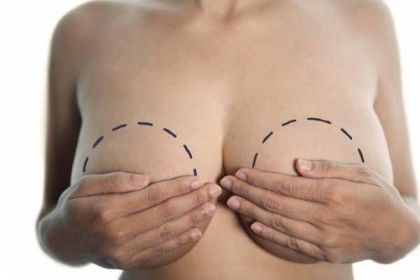 Современные виды грудных имплантов – какие лучшие и как выбрать?