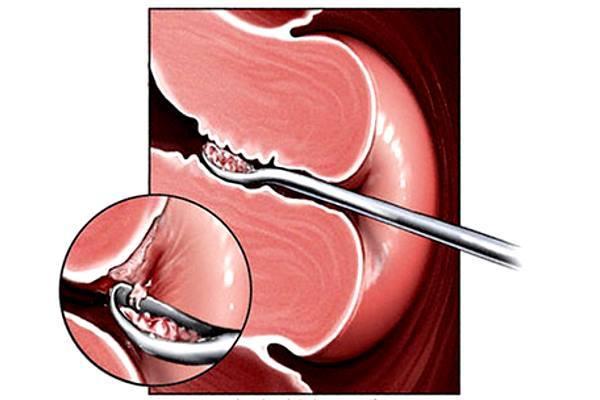 Гиперплазия эндометрия, что это и как лечить после выскабливания