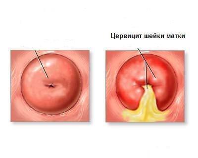 Железисто-кистозная псевдоэрозия шейки матки: причины и лечение