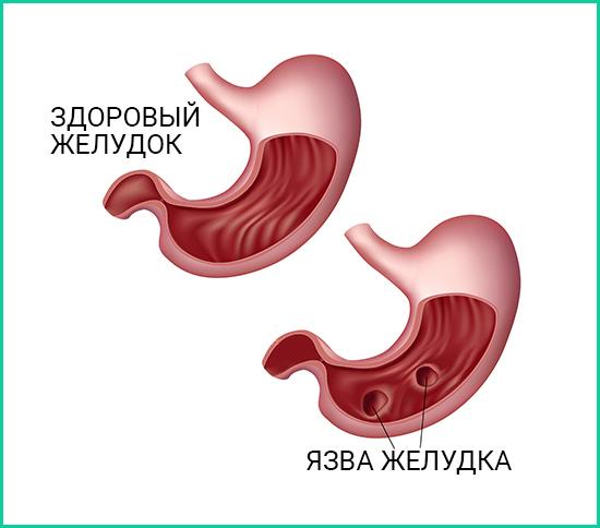 Как лечить язву желудка. Народные средства при язве