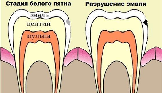 Поверхностный кариес – лечение и профилактика в стоматологии