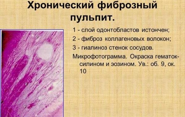 Острый фиброзный пульпит, хронический фиброзный пульпит, лечение фиброзного пульпита