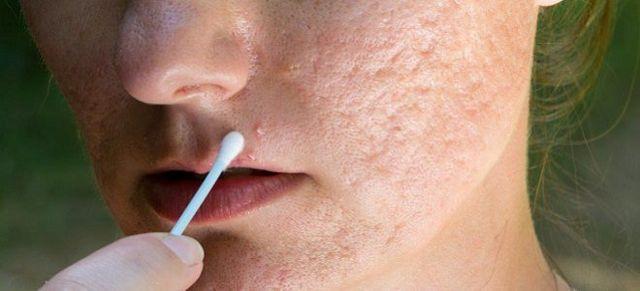 Можно ли протирать лицо хлоргексидином от прыщей: 7 советов