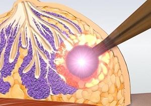 Лучевая терапия при раке молочной железы: последствия, реабилитация