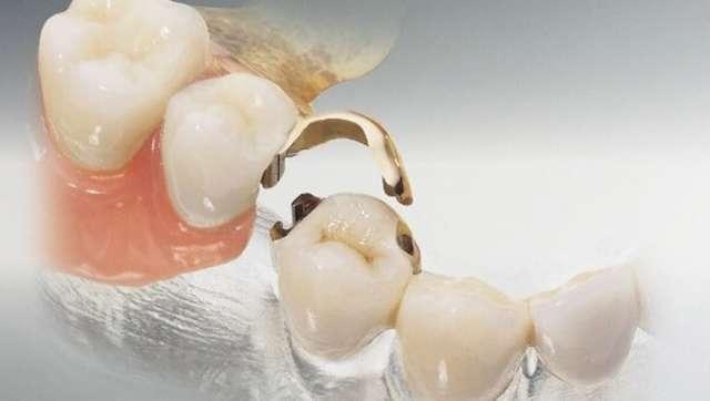 Мостовидные протезы: виды, показания, этапы изготовления и установки
