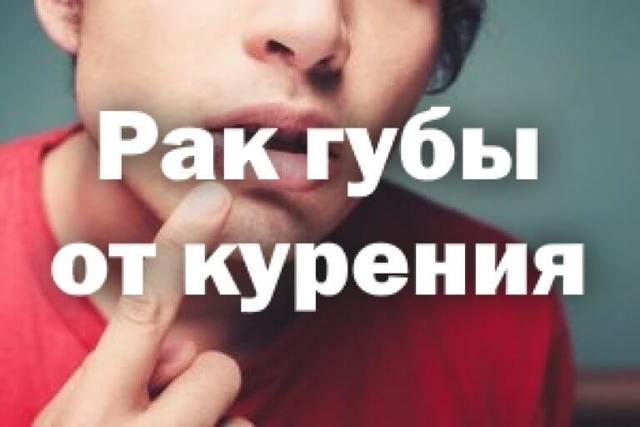 Рак губы от курения - все курильщики в зоне риска?
