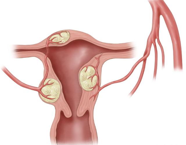 Лапароскопия миомы матки – подготовка, ход, реабилитация, отзывы