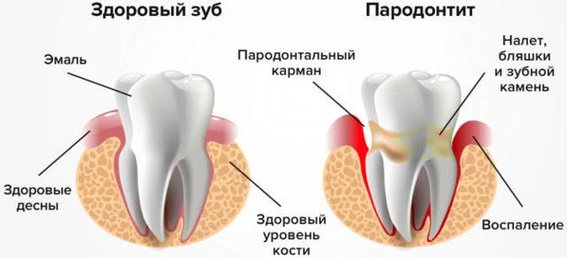 Диагностика заболеваний слизистой полости рта по внутренней поверхности щек